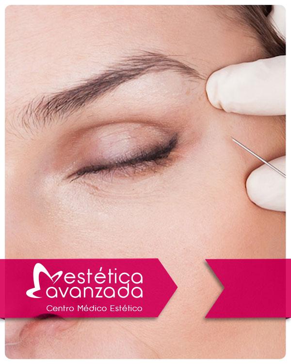 Reserva Botox Patas de Gallo