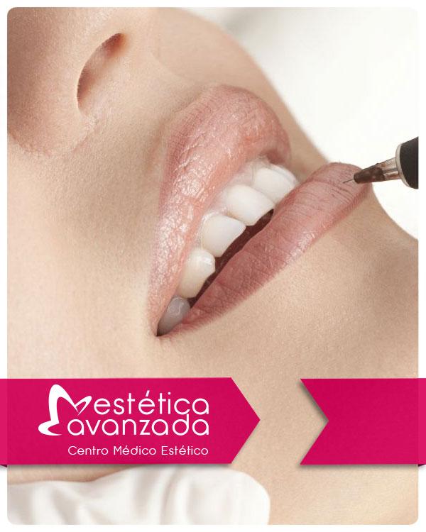 Reserva Micropigmentación en Labios